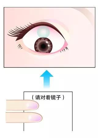 【干货】角膜塑形镜操作超详图解