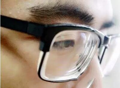 你了解青光眼吗?青光眼的危害你知道吗?
