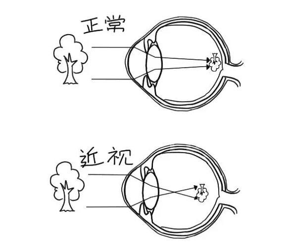 一组漫画告诉你近视,远视,散光是什么